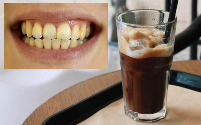 Uống cafe nhiều sẽ làm răng bị ố vàng
