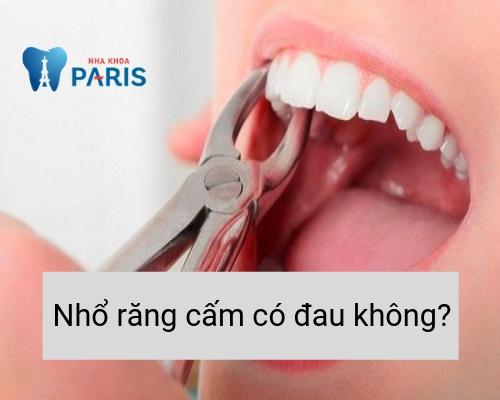 Nhổ răng cấm có đau không?
